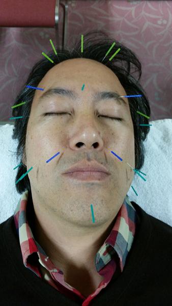Dr Maeda Facial Acupuncture