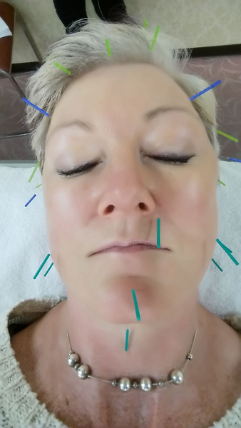 Facial Acupuncture me