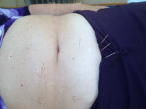 Abdominal Acupuncture for Fibromyalgia